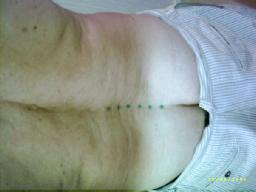 Lumbar osteoarthritis