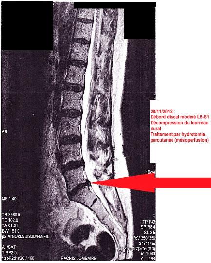 Moderate disc bulging